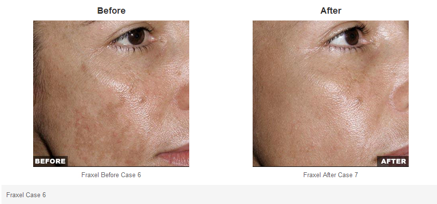 fraxel before and after photos