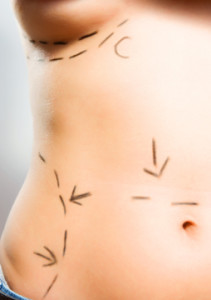 liposuction las vegas