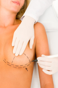 Breast Reduction Before and After Photos - Las Vegas