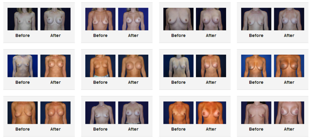 Breast Implants Surgery Before and After Pictures las vegas