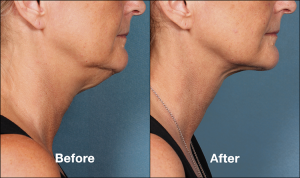 How do Kybella Chin Fat Reduction Injections Work | Las Vegas