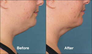 Kybella Chin Fat Reduction Before and After Photos | Las Vegas