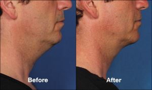 Kybella Chin Fat Reduction Injections Cost | Las Vegas
